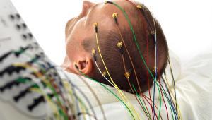 EEG Cupelectroden
