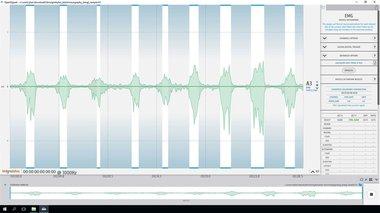 Electromyography (EMG) Analysis